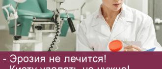 Мифы в гинекологии