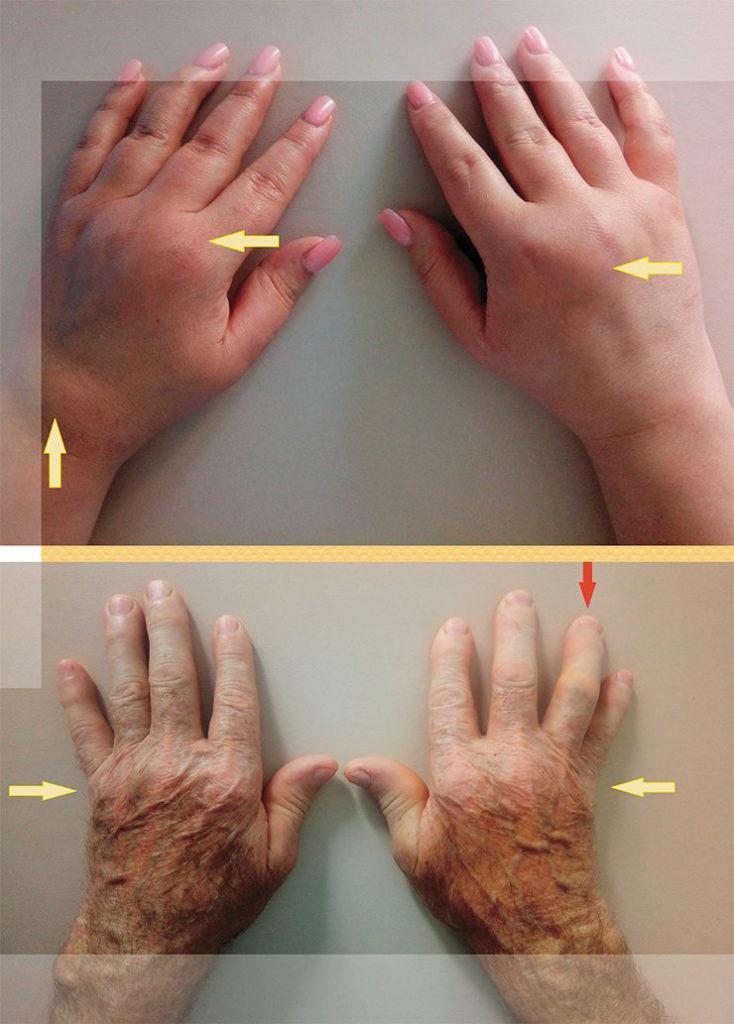 Отек рук при артрите