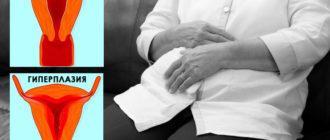 Гиперплазия эндометрия в постменопаузе