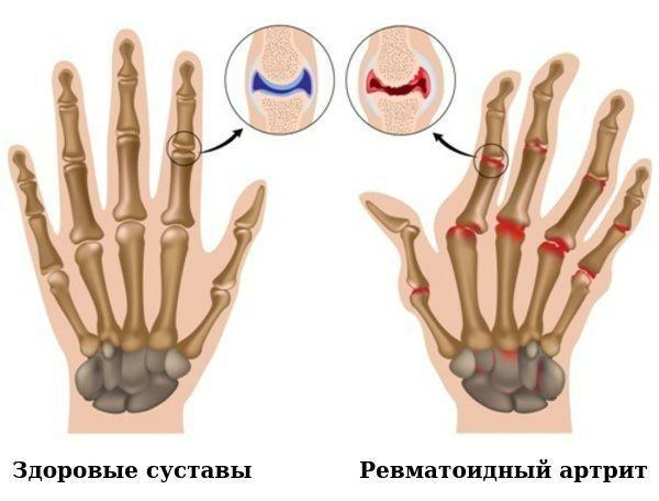 Повреждение суставов при ревматоидном артрите