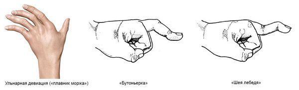 Виды деформации суставов